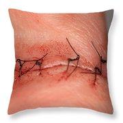 Wound Healing Day 1 Throw Pillow
