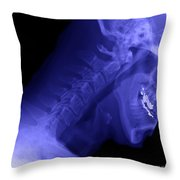 X-ray Of A Cervical Spine Throw Pillow