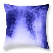 X-ray Of A Pacemaker Throw Pillow