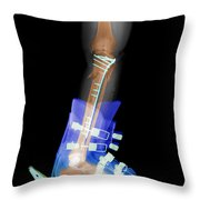 X-ray Of Broken Bones In Ski Boot Throw Pillow