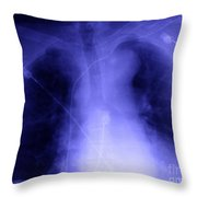 X-ray Of Implanted Defibulator Throw Pillow
