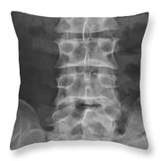 X-ray Of Lower Lumbar Spine Throw Pillow