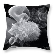Hairy Cell Leukemia, Sem Throw Pillow