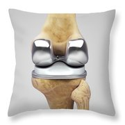 Knee Replacement Throw Pillow