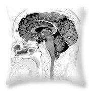 Normal Brain, Mri Throw Pillow
