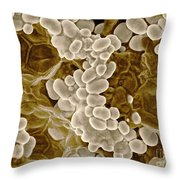 Partly-cooked Lentils, Esem Throw Pillow