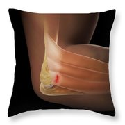 Tennis Elbow Throw Pillow