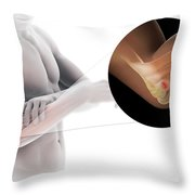 Tennis Elbow Throw Pillow