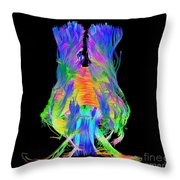 Brain Fiber Tracts, Dti Scan Throw Pillow