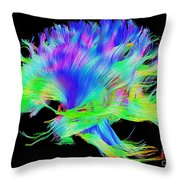 Fiber Tracts Of The Brain, Dti Throw Pillow