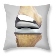 Knee Replacement Throw Pillow
