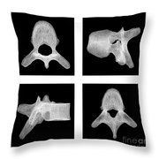 Human Vertebra T5, X-ray Throw Pillow