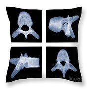 Human Vertebra T5, X-ray Throw Pillow