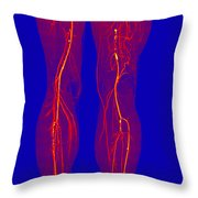 Atherosclerosis, Ct Angiogram Throw Pillow