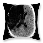 Brain Stroke, Ct Scan Throw Pillow