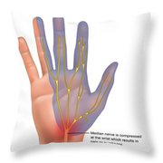 Carpal Tunnel Syndrome, Illustration Throw Pillow