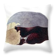 Enlarged Spleen With Infarct Throw Pillow