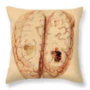 Extravasated Blood, Brain Throw Pillow