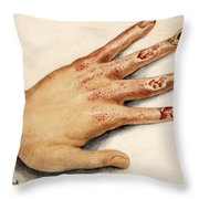 Hand With Roentgen Ray X-ray Throw Pillow