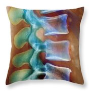 Healthy Lower Spine X-ray Throw Pillow by SPL and Photo Researchers