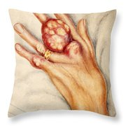 Left Hand With Tophus From Chronic Gout Throw Pillow