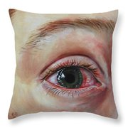 Mike's Cornea Transplant Throw Pillow
