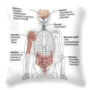 Multiple Sclerosis Symptoms Throw Pillow