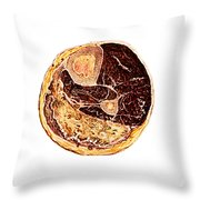 Muscle Degeneration, Fibrosis And Fat Throw Pillow
