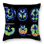 Normal And Alzheimer Brains, Pet Scans Throw Pillow