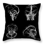 Normal Intracranial Venous System, 3d Ct Throw Pillow