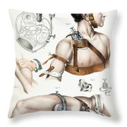 Operative Surgery, Illustration, 1846 Throw Pillow