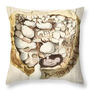 Placenta With Tumors, Illustration, 1836 Throw Pillow