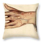 Psoriasis Guttata, Illustration, 1887 Throw Pillow