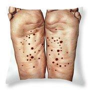 Psoriasis Of Feet, Illustration Throw Pillow