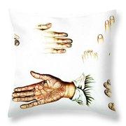 Psoriasis, Syphilis, Onychomycosis Throw Pillow