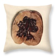 Renal Blood Clot, Kidney, Illustration Throw Pillow