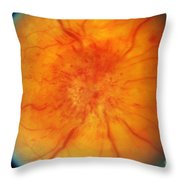 Retinal Papilledema Throw Pillow by Science Source