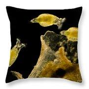 Rotifers Philodina Sp., Lm Throw Pillow