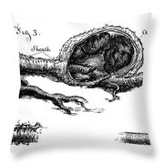 Sections Of Dissected Artery Throw Pillow
