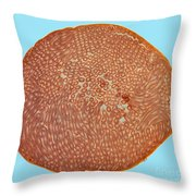 Seminiferous Tubules, Lm Throw Pillow