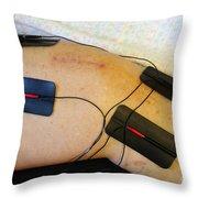 Transcutaneous Electric Nerve Throw Pillow