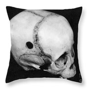 Trepanning: Skull Throw Pillow