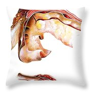 Two Sections Of Aortic Aneurysm Throw Pillow