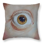 What's The Matter With Uveitis? Throw Pillow