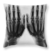 X-ray Of Two Normal Hands, 1896 Throw Pillow