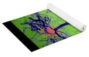 Cerebral Angiogram Yoga Mat