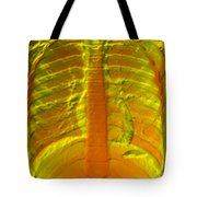 A Normal Chest X-ray Tote Bag