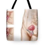 Anatomy Of Bladder Suspension Procedure Tote Bag by Stocktrek Images