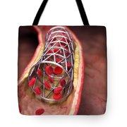 Arterial Stent Tote Bag