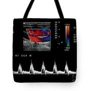 Carotid Duplex Ultrasound Exam Tote Bag